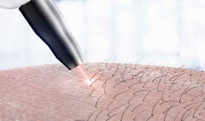 Laser-Hair-Removal-Series-How-to-Prepare